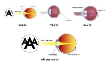 Tật khúc xạ ở mắt