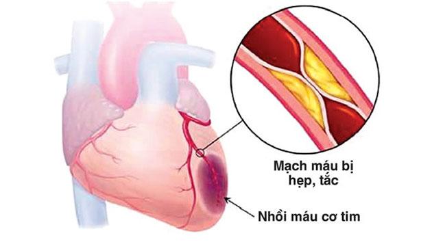 Thiếu máu cơ tim