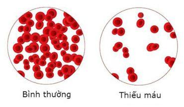 Thiếu máu do thiếu sắt